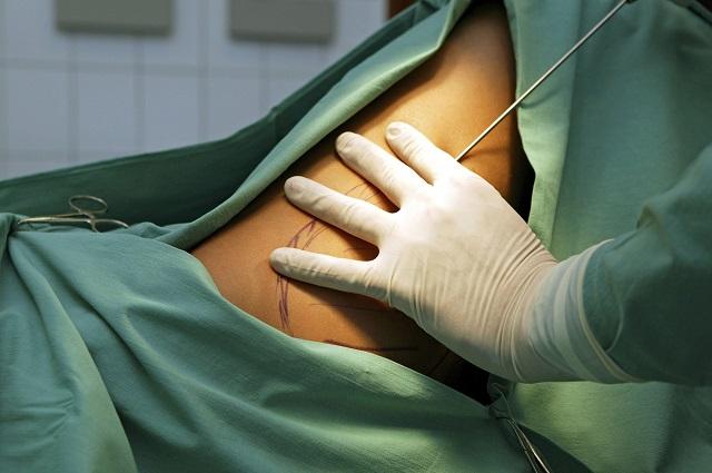 bekende plastische chirurg
