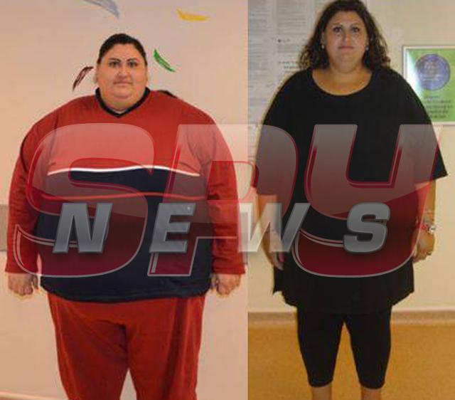 Obezitatea morbida, risc major pentru sanatate