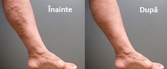 cum să scapi de varicele umflate cea mai bună cremă hidratantă pentru picioarele uscate cu mâncărime
